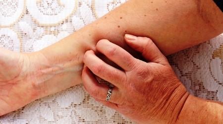 dermatitisz