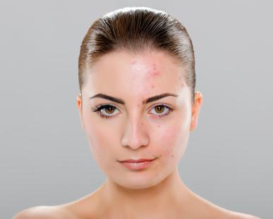 Pattanásos bőr